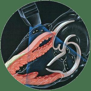 Transtorasik-ekokardiyograf